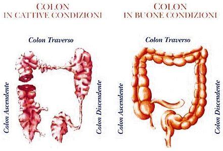 alimenti per intestino infiammato la dieta nella sindrome colon irritabile
