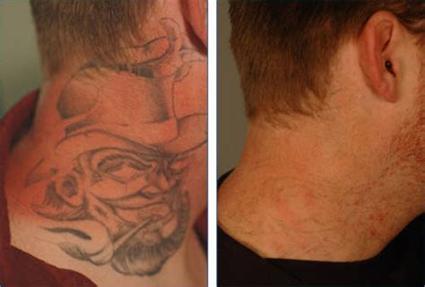 neck tattoo removal laser removal in vascular regions removal