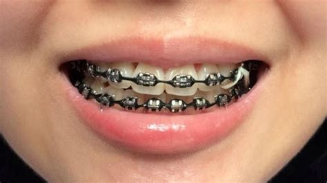 black color braces image result braces colors black braces