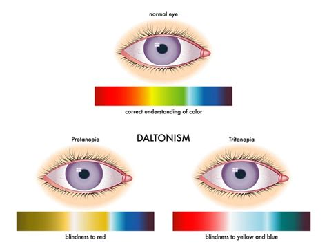 Signs And Symptoms Of Color Blindness quotes about color blindness quotesgram