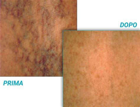 vasi capillari rotti vasi capillari 28 images l apparato circolatorio ppt