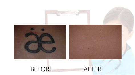 alex trivantage laser tattoo removal laser removal before after photos alex