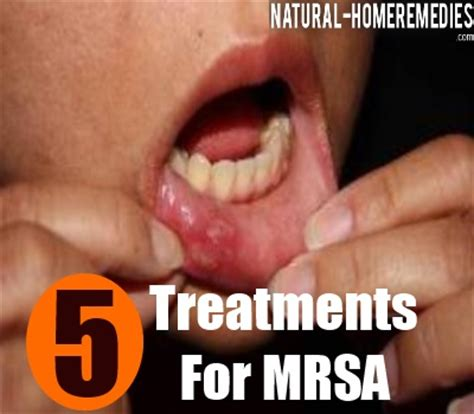 5 effective treatment for mrsa how to treat mrsa