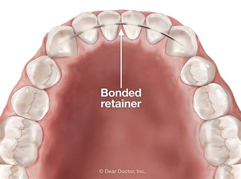 bonded retainers pros and cons