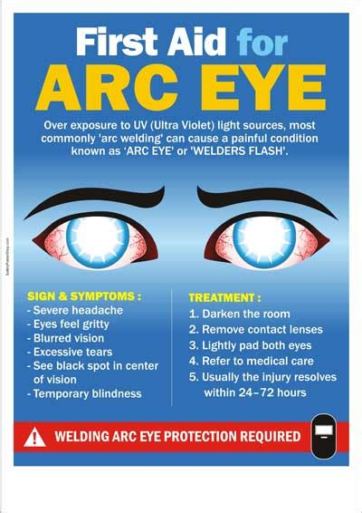 Home Kitchen Aid by Safety Poster First Aid For Arc Eye Safety Poster Shop