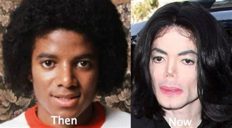 what was wrong with michael jackson 10 black men who whitened their skin black cosmopolitan