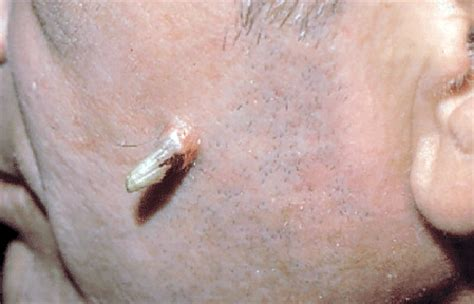 skin growth how to spot a precancerous growth on your skin american academy of dermatology