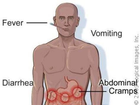 fever symptoms salmonella infections with an overview on typhoid fever its epidemiology and pathogenesis