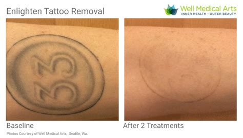 laser tattoo removal seattle removal in seattle using pico technology at well