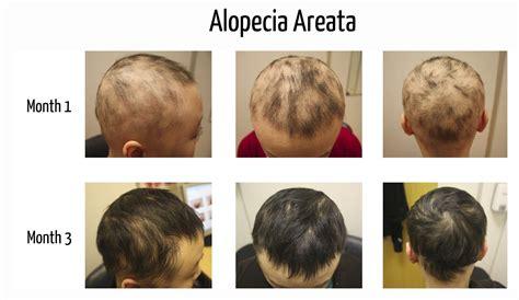 alopecia areata causes alopecia barbae regrowth hairstylegalleries com