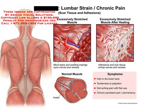 can scar tissue from c section cause pain amicus illustration of amicus injury lumbar muscles strain