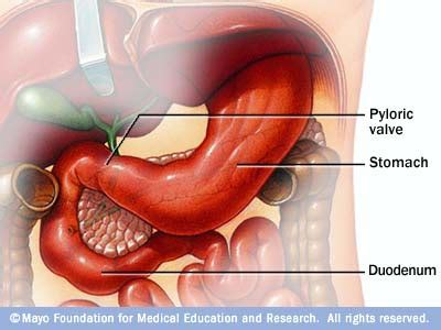 Stomach Bile In Stool island penang shares gastritis