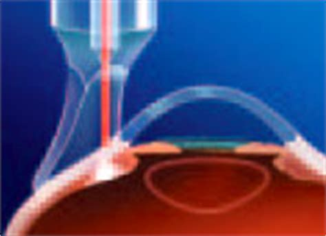 diode laser for glaucoma diode laser ciliary ablation cyclophotocoagulation west coast glaucoma centre west