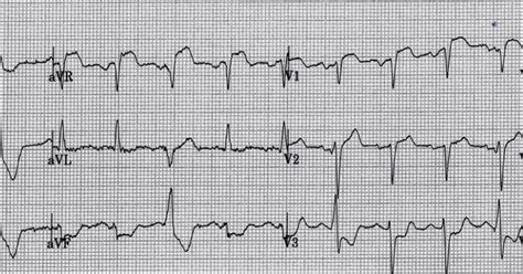ecg pattern meaning dr smith s ecg blog five primary patterns of ischemic st