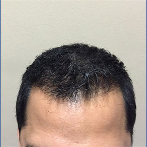 hair transplants in tj reviews hair transplant reviews for hmr