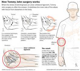 tommy john surgery a photo on flickriver