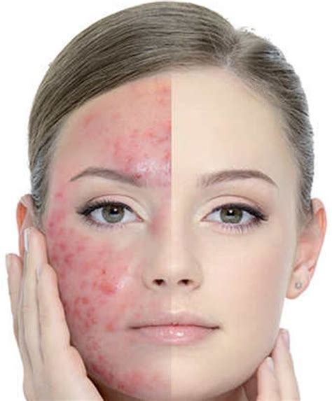 Get Rid Of Acne by How To Get Rid Of Acne Marks Fast