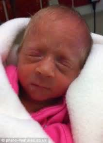 Baby lucia in intensive care when she was first born nine weeks early