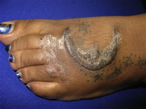 tattoo infection rate tattoo associated complications journal of pediatric and