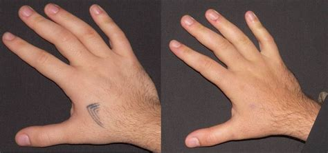 permanent tattoo removal cost 14 best removal cost images on