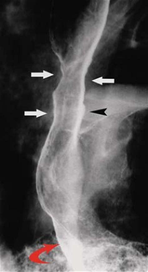 pharynx  esophagus radiology key
