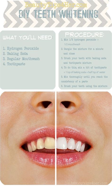 teeth whitening best diy tricks