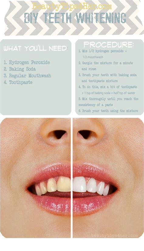 Homemade Teeth Whitening   Best DIY Tricks