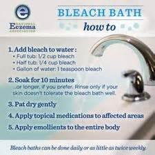 How To Whiten A Bathtub Bleach Baths For Eczema National Eczema Association