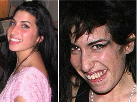 Winehouse Somehow Looks Better Not Done Up by Winehouse Addiction Winehouse Struggled