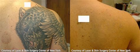 tattoo removal success pictures laser removal nyc laser skin surgery center of