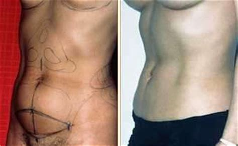 Can I A Tummy Tuck After C Section by C Section And Tummy Tuck Before And After 187 Tummy Tuck