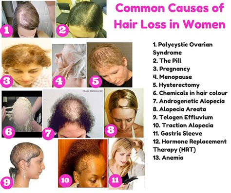 alopecia hair loss in women the top 10 causes of hair loss in women and what you can
