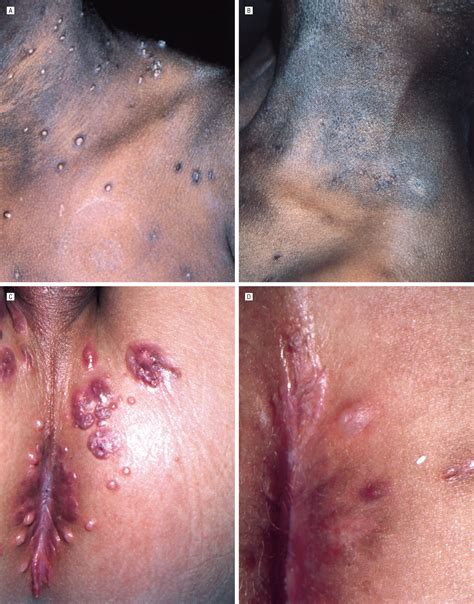 Infected A Novel The Infected topical cidofovir a novel treatment for recalcitrant