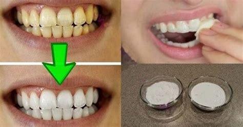whiten  yellow teeth     minutes guaranteed