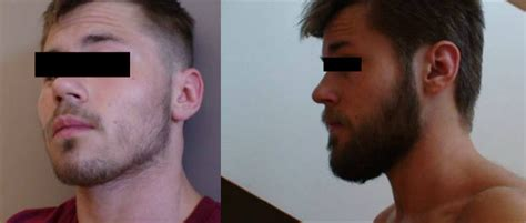 rogaine before and after pictures minoxidil and beard growth can rogaine be applied to face