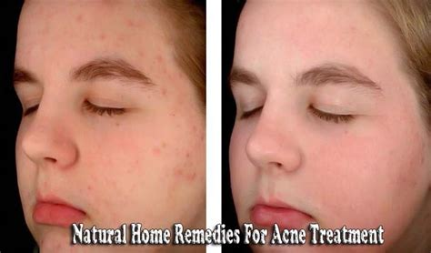 12 Best Tips On Treating Acne by Home Remedies For Acne Treatment Acne Treatment