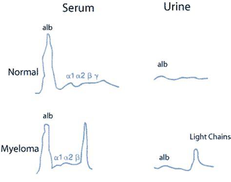 protein electrophoresis urine serum and urine electrophoresis