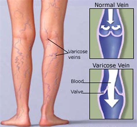 varicose veins treatment symptoms causes pictures home remedies for varicose veins