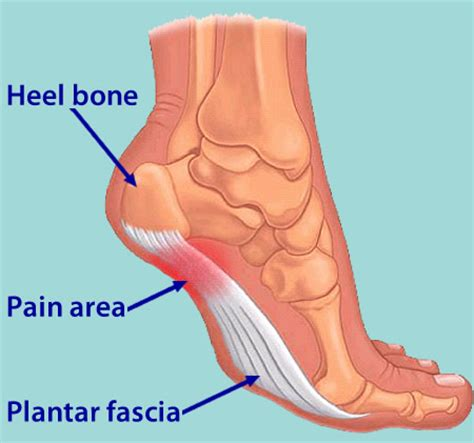 plantar fasciitis in the foot