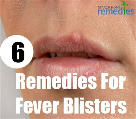 fever blisters home remedies treatment home