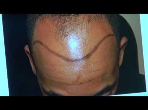hairline restoration for black men fue hair transplant black men hair line restoration dr