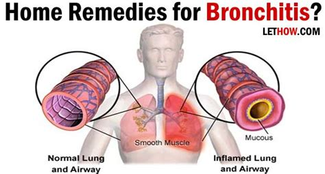 home remedies for bronchitis treatment see best ideas