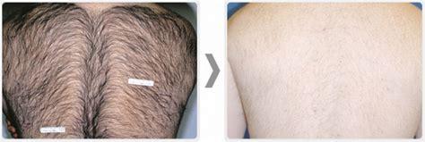 palomar laser for hair removal used palomar starlux 500 aesthetic equipment for sale