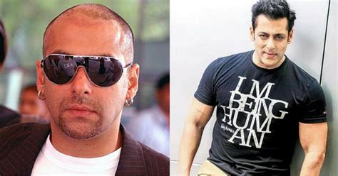 himesh reshammiya about hair transplantation what do bollywood actors do if they were once bald and