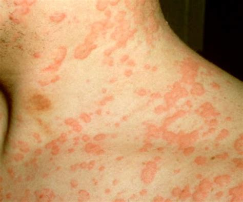 allergic rash rash and hives from allergic reaction to antibiotic