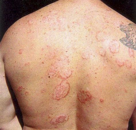 lyme disease lyme disease sarcoidosis lyme australia