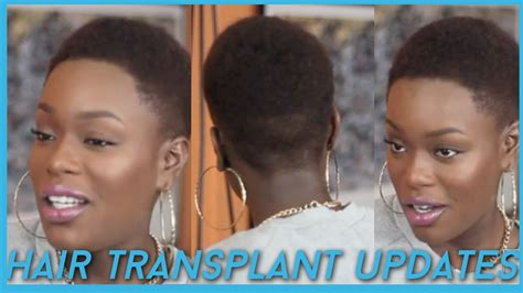 hair transplant for black women hair transplant for black women short hairstyle 2013