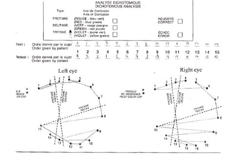 farnsworth d 15 color vision test farnsworth d 15 hue test at presentation showing bilateral