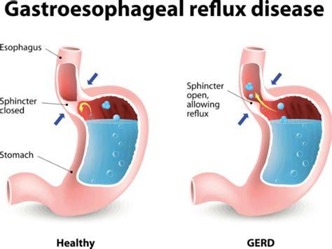 gejala penyebab penyakit stroke dan cara penyembuhan gerd definisi penyebab gejala dan cara penyembuhan