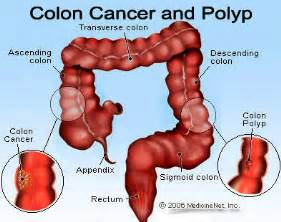 blood in stool colon cancer pictures to pin on